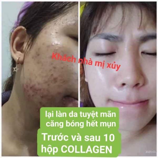 diệp lục collagen review