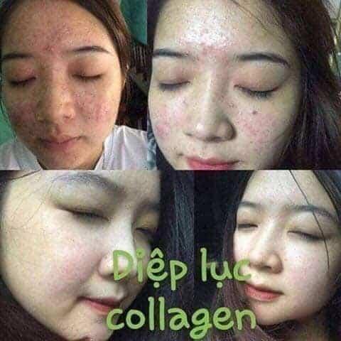 diệp lục collagen trị mụn